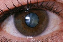 Cataract-01